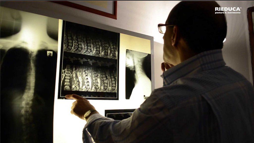 radiologia clinica-diagnostica per immagini-rieduca-metodo rieduca-ginnastica posturale-maurizio cancedda